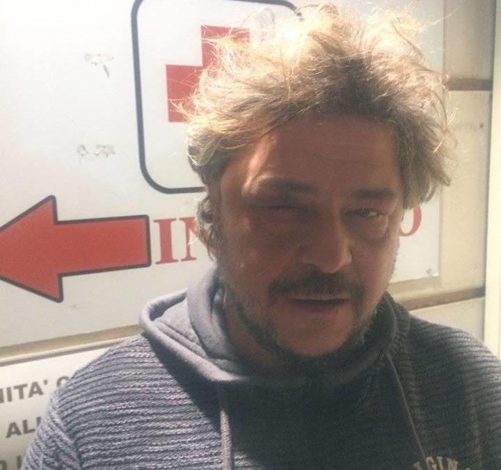 """Solidarietà a Tony Della Pia per la grave aggressione subita ad opera di agenti della PS. Ora si faccia giustizia! – SERVIZIO DE """"LE IENE"""" & RASSEGNA STAMPA"""